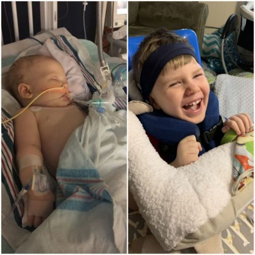 Boy who doctors said wouldn't survive prepares for 4th birthday